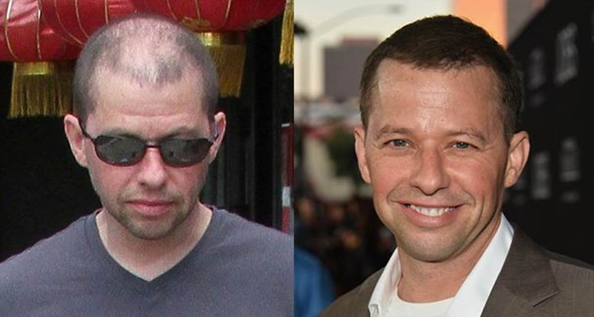 Jon Cryer Reveals to Conan O'Brien, that He is Really Bald!