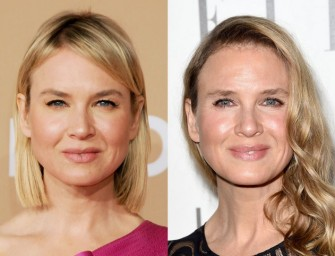 What In The World Happened To Renee Zellweger's Face? (PHOTOS)